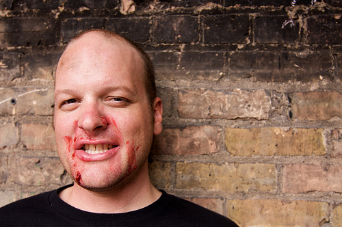 Headshot of a person with red smears around their mouth, with a brick wall background